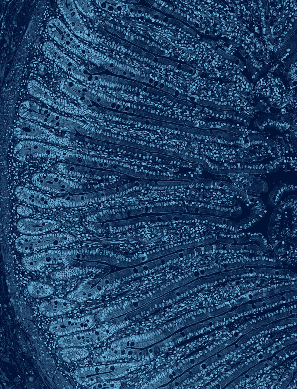 Section of the human small intestine (jejunum). H&E stain. When assessing probiotics, the functional impact on the human gut is as important as metagenomic sequencing to establish definitive clinical outcomes. Photo credit is: Visuals Unlimited, Inc./Dr. Gladden Willis