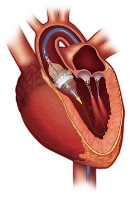 Anatomical image of Edwards Lifesciences SAPIEN 3 transcatheter heart valve