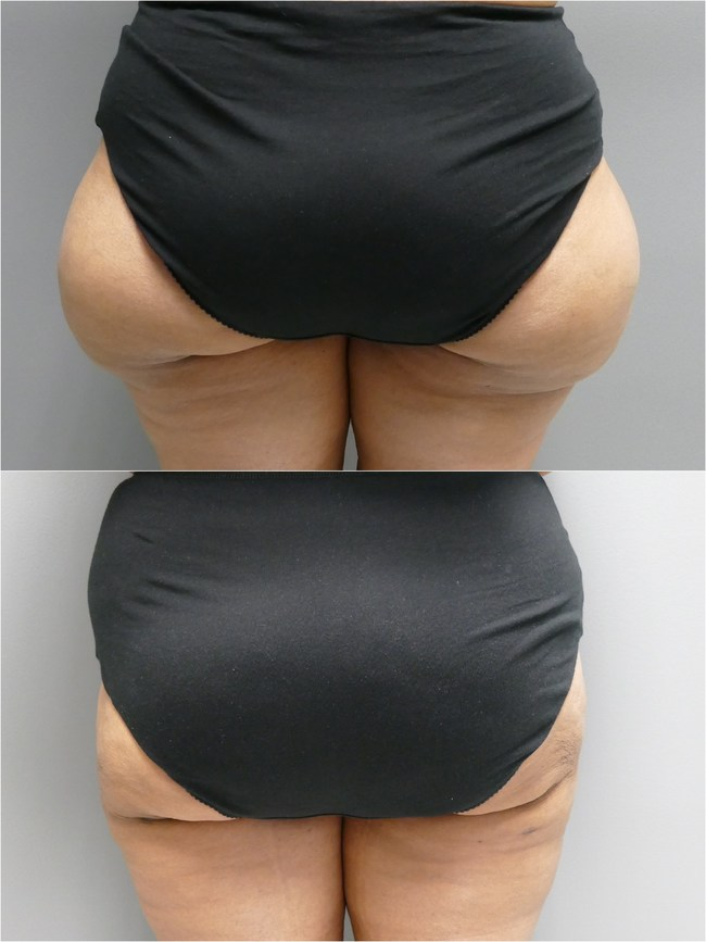 50 year old female with abnormal fat deposits, commonly known as saddle bags, underwent combination liposuction procedure using ultrasonic skin tightening liposuction and power liposuction for permanent correction. Post op photo taken 3 weeks post procedure.