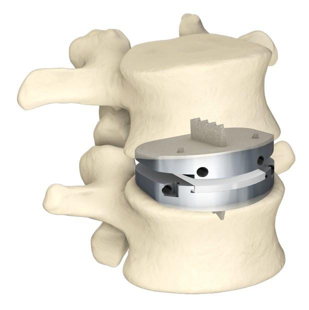 (PRNewsfoto/Centinel Spine, LLC)