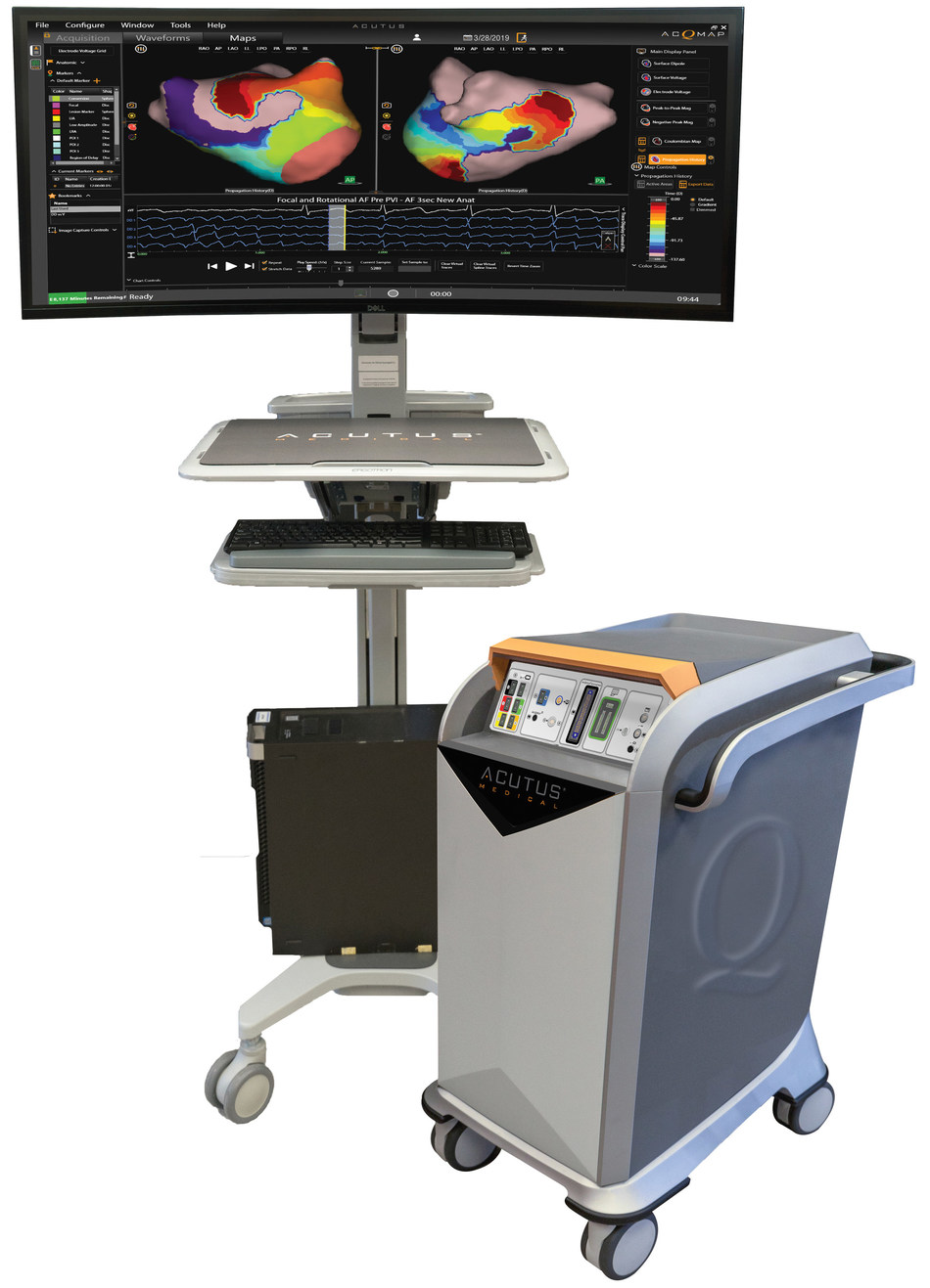 AcQMap enables physicians to uncover the electrical activation pattern of the heart with real-time visualization during electrophysiology procedures.