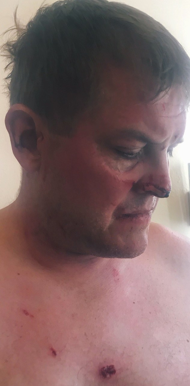 Scott Hapgood after he and his family were attacked.