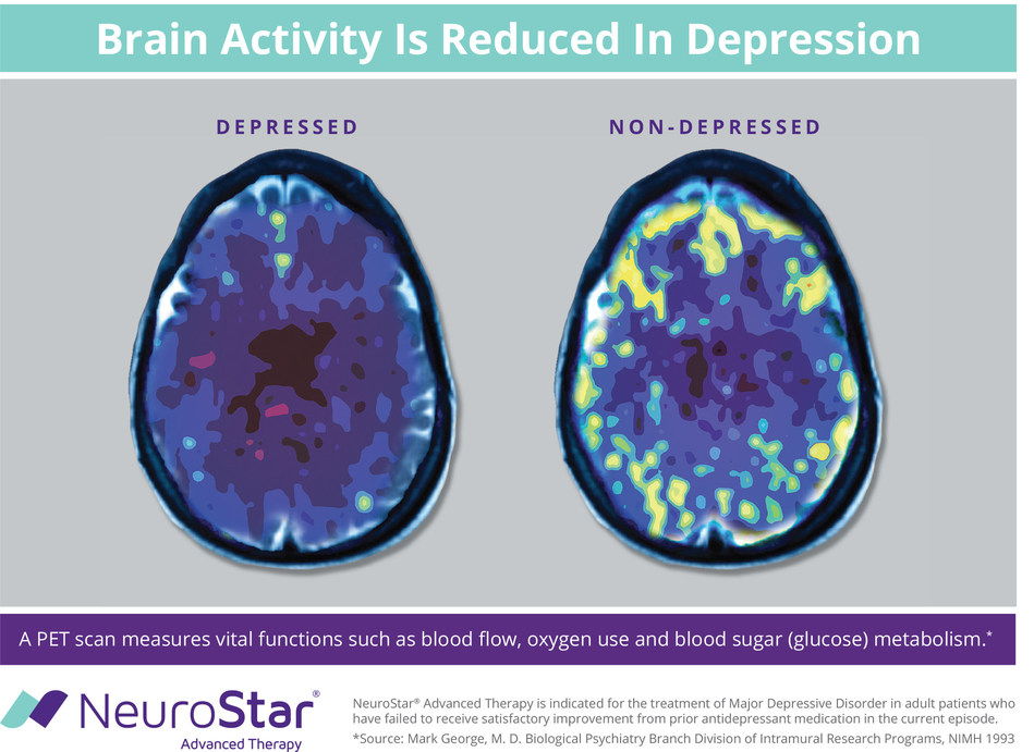 There are differences between a depressed and non-depressed brain, yet a majority of Americans (73 percent) don't know depression is a brain disorder according to a survey from NeuroStar Advanced Therapy conducted by The Harris Poll.