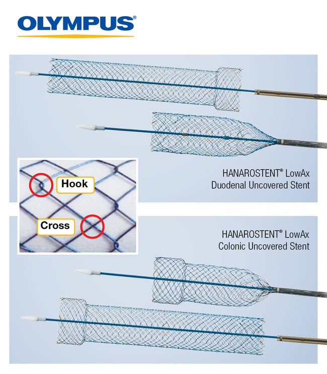 HANAROSTENT® LowAx™ Colonic and Duodenal Uncovered Stents are 510(K) cleared devices made by M.I. Tech and now distributed exclusively through Olympus in the U.S. Both are used for the treatment of strictures to improve quality of life.
