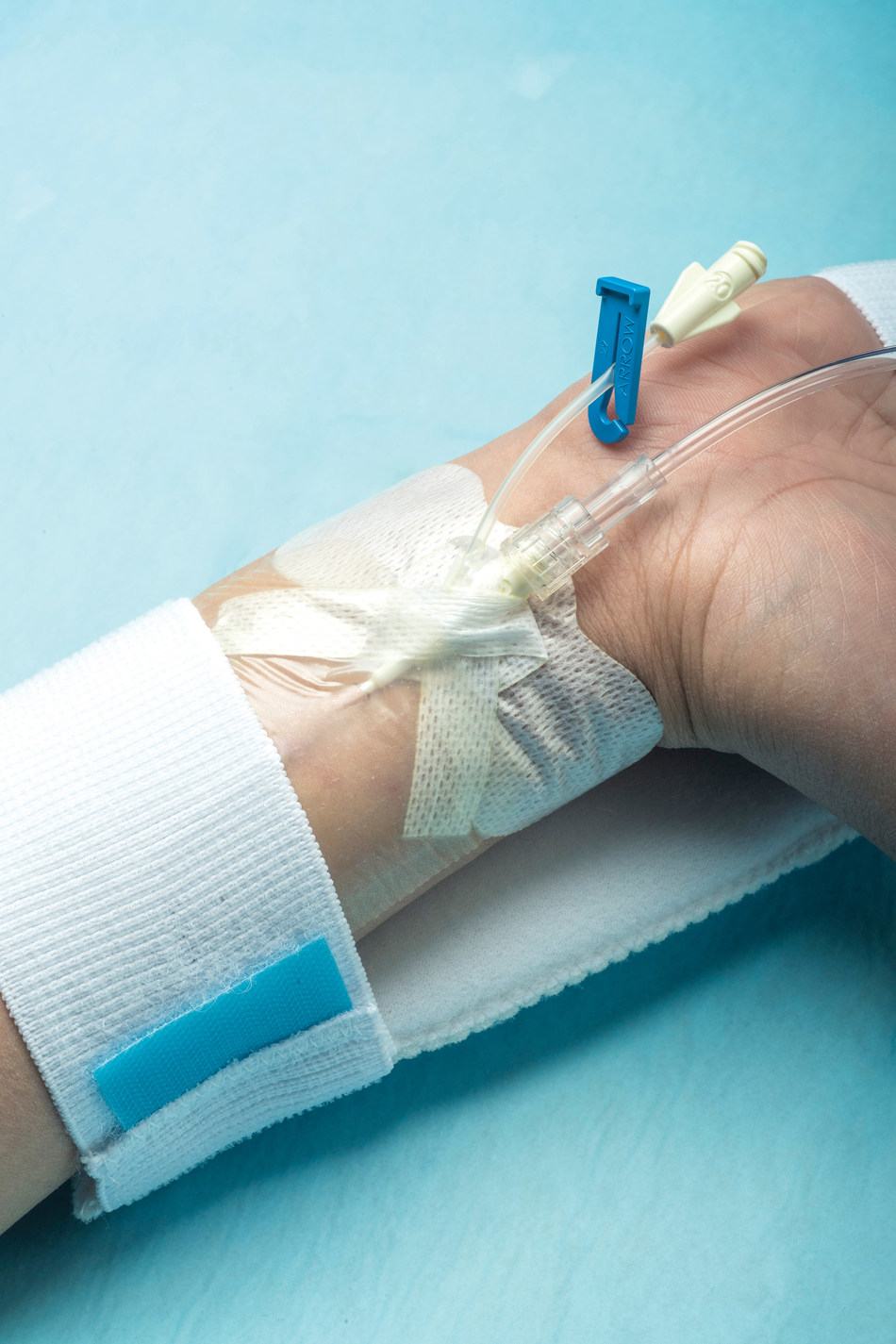 Dale Hold-n-Place Catheter Securement devices