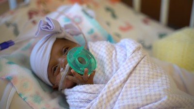 Officially weighing in at 245 grams (8.6 oz.), Baby Saybie is believed to be the world's lightest baby ever to survive. She was born in December 2018 at Sharp Mary Birch Hospital for Women & Newborns in San Diego, and was discharged in May as a happy 5-pound infant.