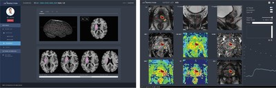 """JBS-01K"" AI-based automatic analysis of stroke using MR images (left) and ""JPC-01K"" AI-based automatic analysis of prostate using MR Images (right)"