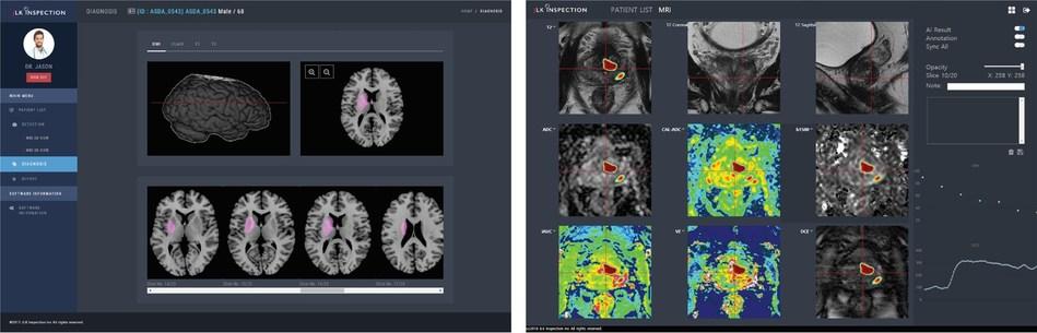 """JBS-01K"" AI-based automatic analysis of stroke using MR images (left) and ""JPC-01K"" AI-based automatic analysis of prostate using MR Images (right)"