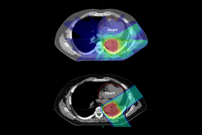 Proton Therapy reduces radiation to critical structures such as the heart versus conventional X-ray radiation as seen in these comparative treatment plans for lung cancer.
