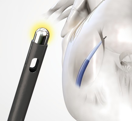 Baylis Medical radiofrequency NRG® Transseptal Needle (CNW Group/Baylis Medical)