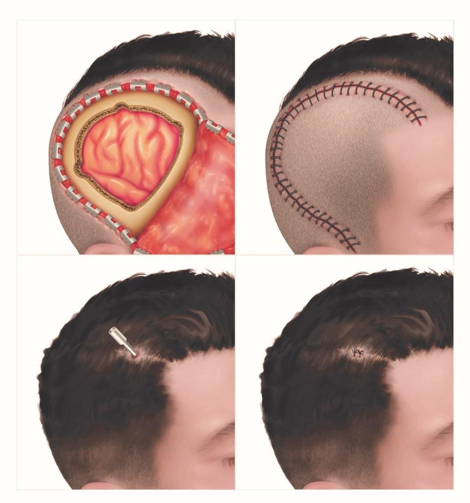 Figure 2: Top row: Open craniotomy - intraoperative and postoperative. Bottom row: Minimally invasive laser ablation - intraoperative and postoperative.