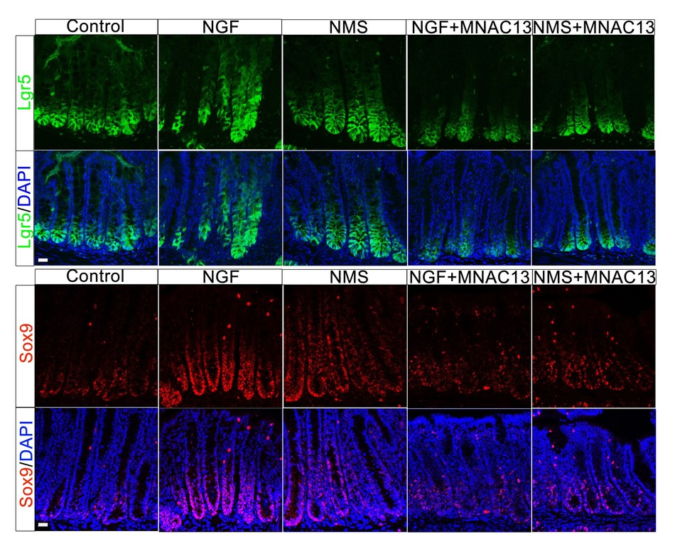 Early life stress and NGF promote gut stem cells to grow and divide