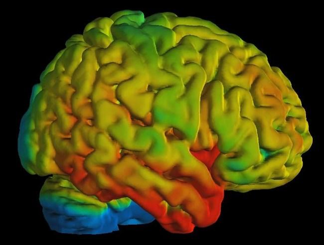 PET/MR image processed by PMOD: Serotonin receptor density in human brain for study of psychiatric disorders. Courtesy A. Hahn, M. Savli, R. Lanzenberger, Medical University of Vienna, Austria.