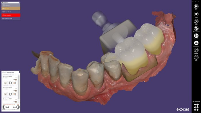 """ChairsideCAD is the first complete open-architecture CAD software platform for same-day dentistry. The chairside workflow is streamlined, easy to learn, and optimized for use in the practice, including a step-by-step guide through the design process. It is based on the same proven technology as exocad's """"best-of-breed"""" lab software, renowned for its reliability and robust features. In just a few steps, exocad's ChairsideCAD creates highly esthetic proposals with minimal post processing."""