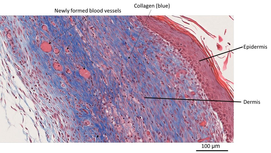 High-magnification detail of a section (stained with Masson's trichrome) collected from a healed wound biopsy treated with BioLexa compound. Note the complete reepithelialization process and the re-forming of an epidermal and dermal layer, with multiple newly formed blood vessels (capillaries). Fibroblasts in the dermis actively deposit collagen (blue).