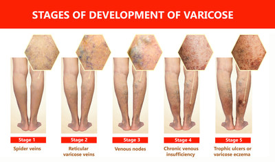 Most people with varicose veins will never have medical problems with them. But for some, the condition develops into something more serious.