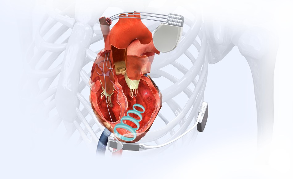 The WiSE Cardiac Resynchronization Therapy (CRT) System.