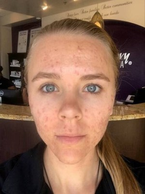 Results after the fourth treatment with the Acne Facial Series powered by Proactiv